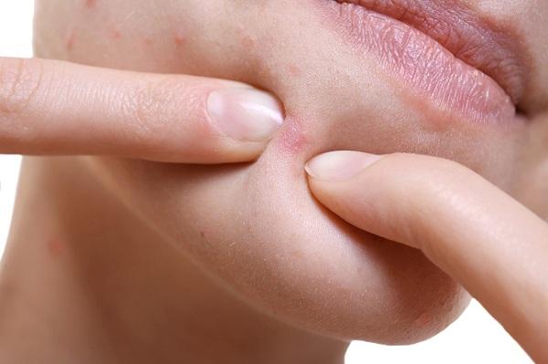 4 bước đơn giản hàng ngày trị mụn ẩn dưới da tại nhà