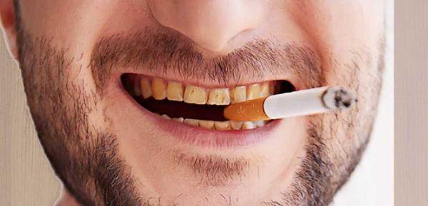 Thuốc lá - thủ phạm gây hôi miệng ở đàn ông